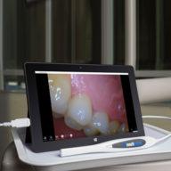 Intra-Oral Cameras